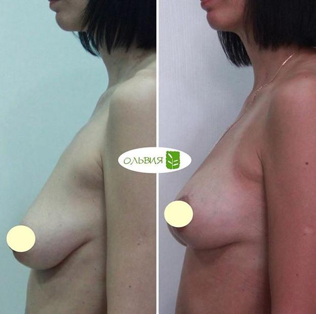 Подтяжка и липофилинг груди, спустя 2 месяца