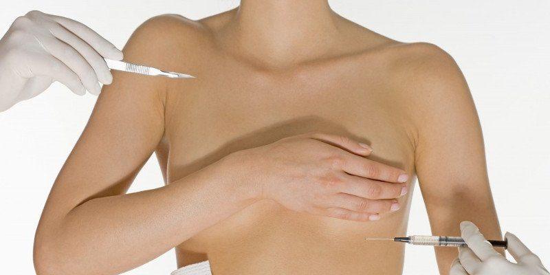 Липофилинг груди (одна грудь)