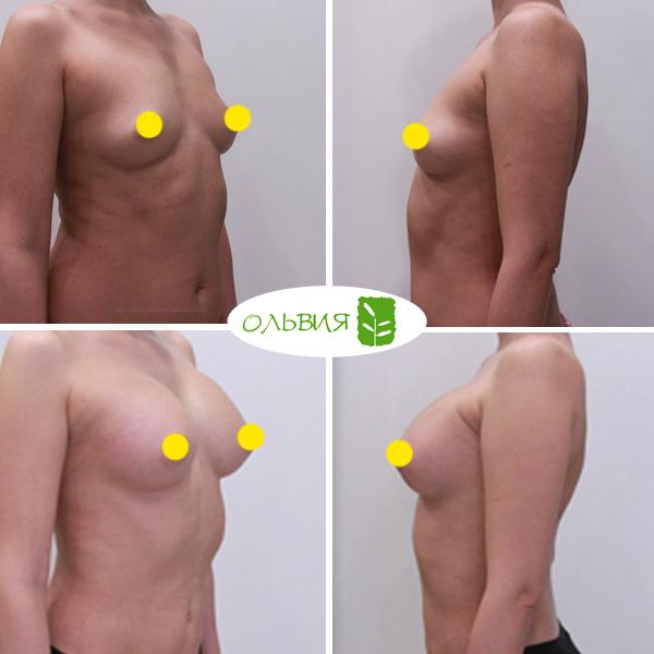 Увеличение груди Sebbin 370гр, спустя 1 месяц