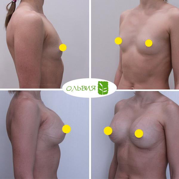 Увеличение груди имплантами Sebbin 325гр, спустя 2 недели