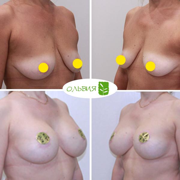 Подтяжка груди с имплантами, спустя 5 месяцев