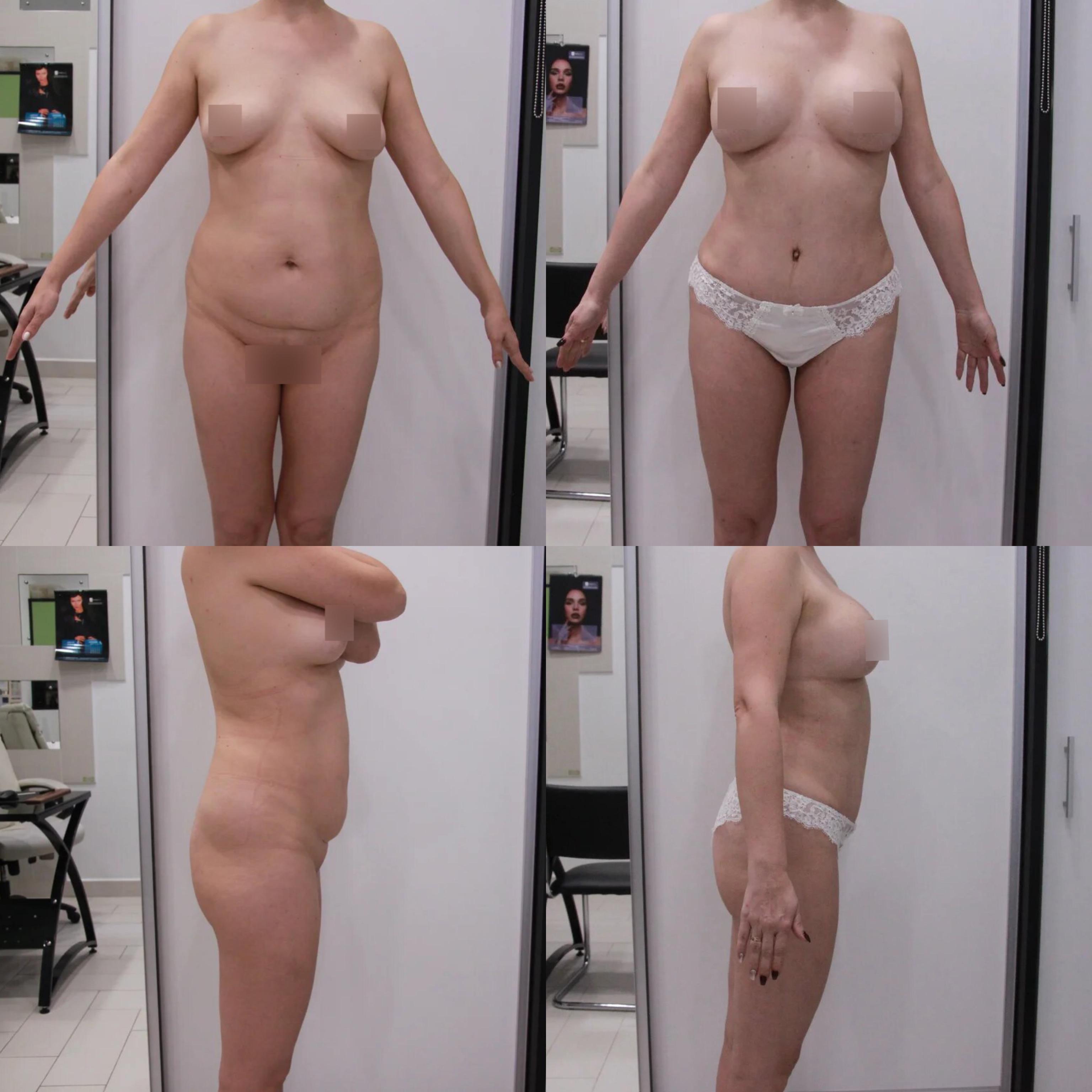 Абдоминопластика, подтяжка груди, спустя 1 год