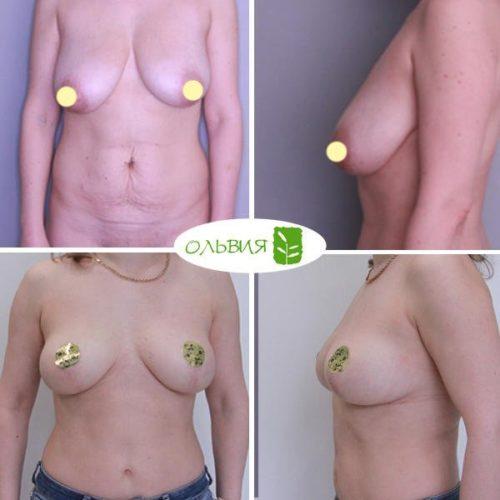 Абдоминопластика, редукция груди, липосакция живота, поясницы, спустя 1 год