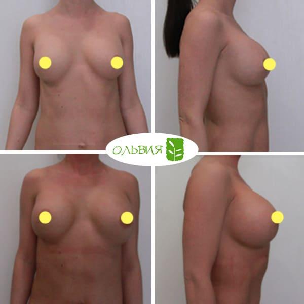 Абдоминопластика, замена имплантов Sebbin 525гр, спустя 8 месяцев