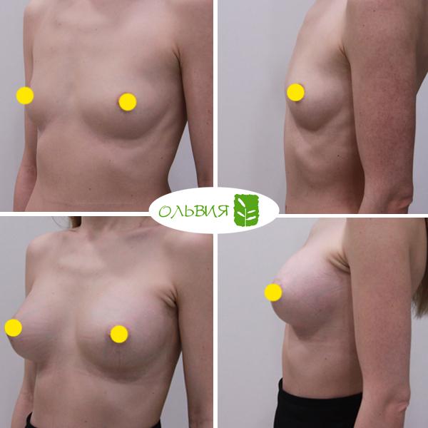 Эндоскопический доступ, анатомия 370гр, спустя 1 месяц
