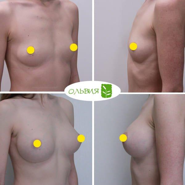 Эндоскопический доступ, анатомия 370гр, спустя 6 месяцев