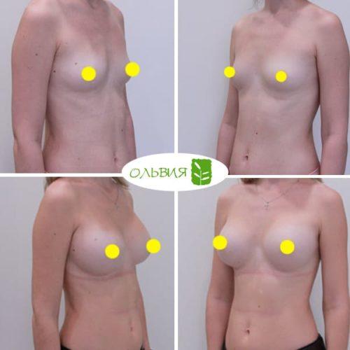 Эндоскопическое увеличение груди, SEBBIN 370гр, спустя 1 год
