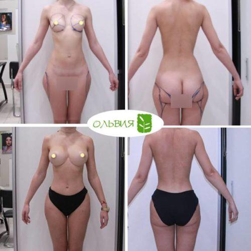 Липофилинг груди, липосакция галифе, спустя 1 год