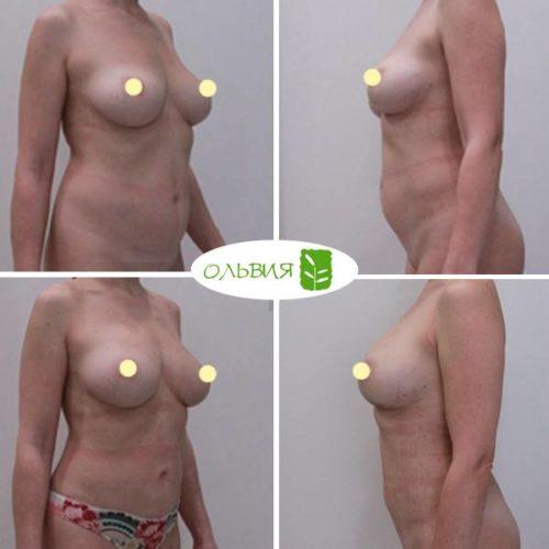 Липофилинг груди, липосакция живота, поясницы, спустя 1 месяц