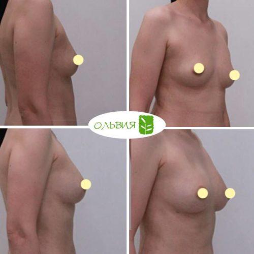 Липофилинг груди, спустя 1 месяц