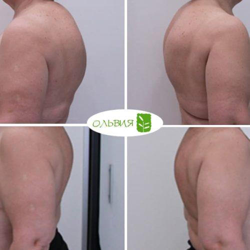Липосакция горбика, спины, спустя 2 недели