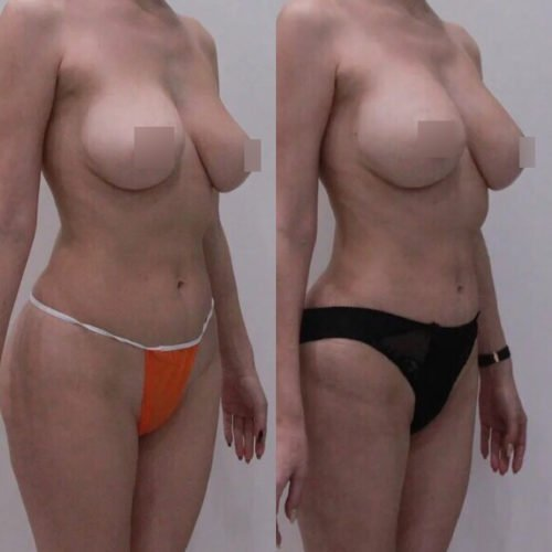 Липосакция живота, липофилинг груди, спустя 1 месяц