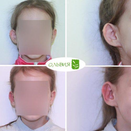 Отопластика (коррекция правого уха), спустя 2 недели
