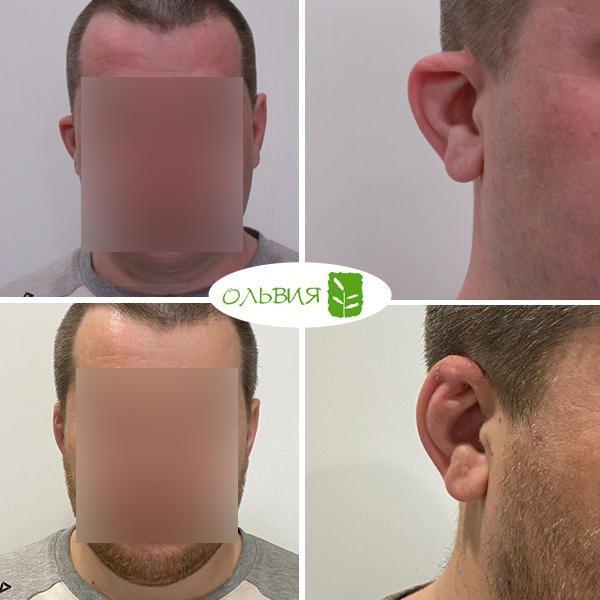Отопластика (коррекция ушной раковины), спустя 1 месяц