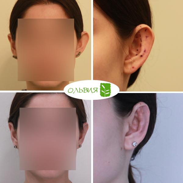 Отопластика левого уха, спустя 2 месяца