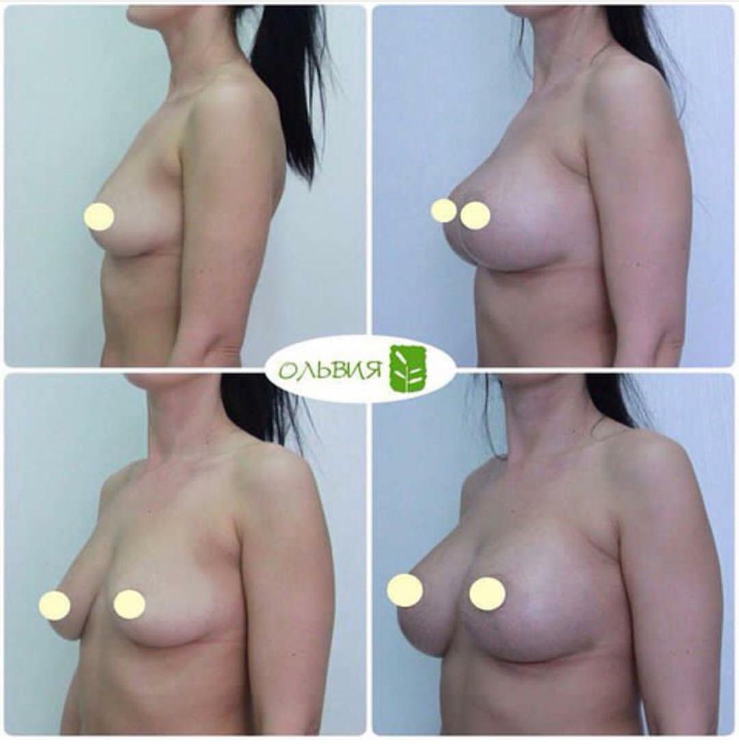 Периареолярная подтяжка груди с имплантами 330гр, фото спустя 1 месяц