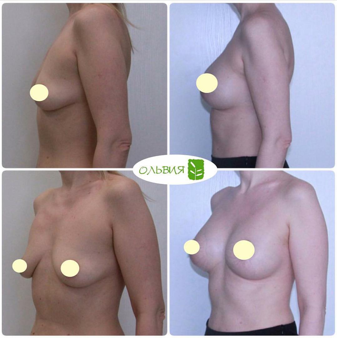 Периареолярная подтяжка груди с установкой имплантов 280гр и 325гр, спустя 1 месяц