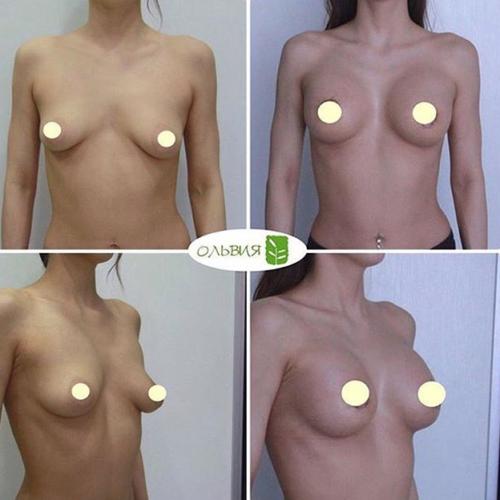 Периареолярная подтяжка, круглые импланты, спустя 2 недели