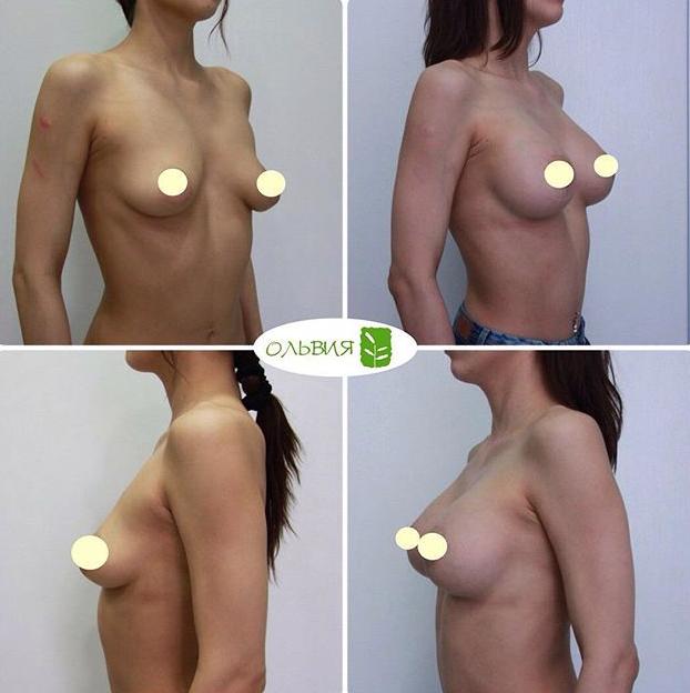 Периареолярный доступ, круглые импланты, спустя 6 месяцев