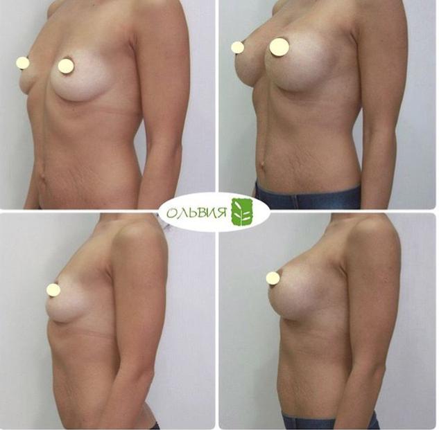 Периоральный доступ увеличения груди