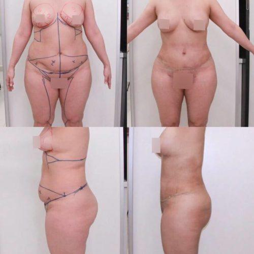 Пластика живота, липосакция поясницы, живота, внутренней стороны бедра, колен, липофилинг груди, спустя 3 недели