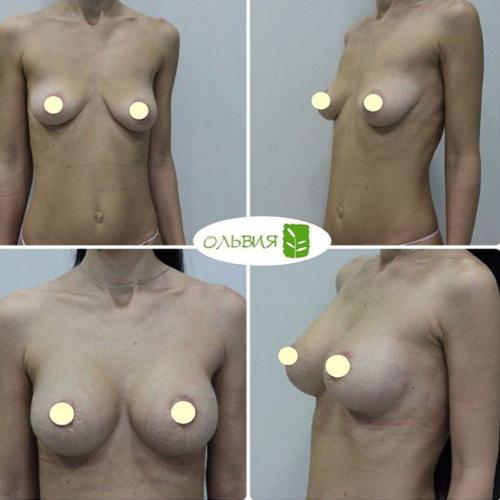 Подтяжка груди, импланты 295гр