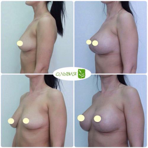 Подтяжка груди, импланты круглые 330гр, спустя 1 месяц