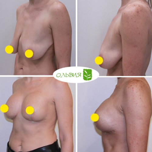 Подтяжка груди с имплантами Allergan 330гр, спустя 3 недели