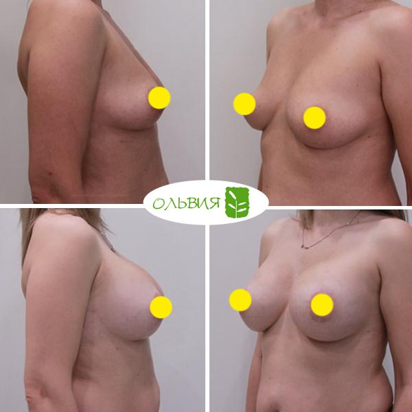 Подтяжка груди с имплантами, Sebbin 325гр, спустя 6 месяцев