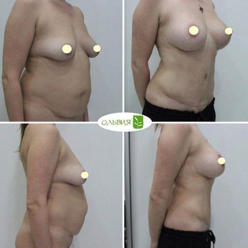 Подтяжка груди с имплантами