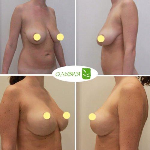 Подтяжка груди с установкой имплантов, спустя 6 месяцев