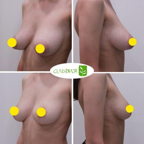 Подтяжка груди, спустя 2 месяца