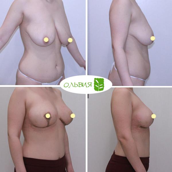 Подтяжка груди, спустя 3 недели