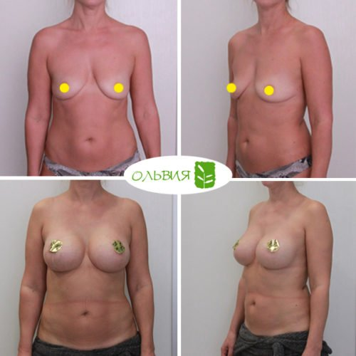 Подтяжка груди, увеличение молочных желез имплантами NAGOR 375гр, спустя 2 месяца
