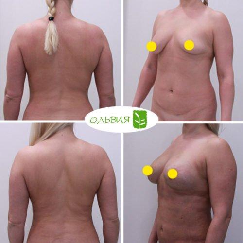 Подтяжка, липофилинг груди, липосакция живота, поясницы, крестца, спустя 2 недели