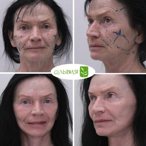 Подтяжка лица нижней две трети лица и шеи, лазерная шлифовка, спустя 1 месяц