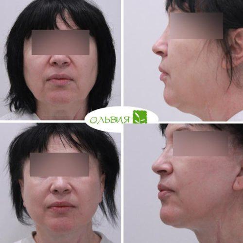 Подтяжка лица нижней две трети лица и шеи, спустя 1 год