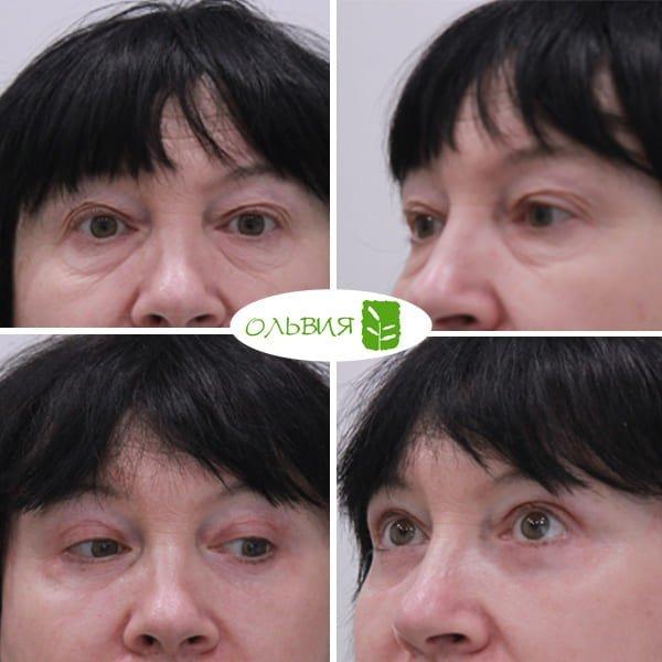 Подтяжка нижней две трети лица и шеи, верхняя и нижняя блефаропластика, спустя 1 месяц