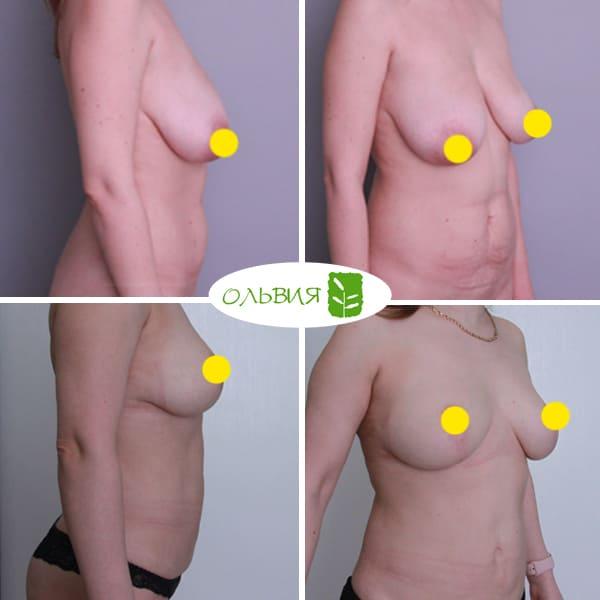 Редукция груди, липосакция живота, поясницы, спустя 1 год