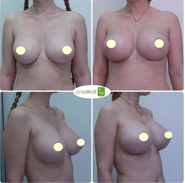 Субмаммарный доступ, круглые импланты 590гр, спустя 1 месяц