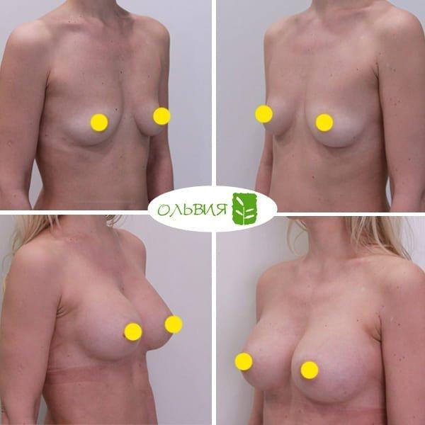 Увеличение груди Sebbin 325гр, спустя 3 месяца