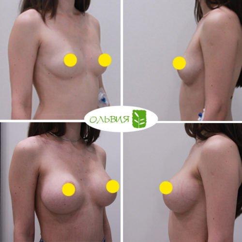 Увеличение груди, Sebbin 325гр, спустя 3 месяца