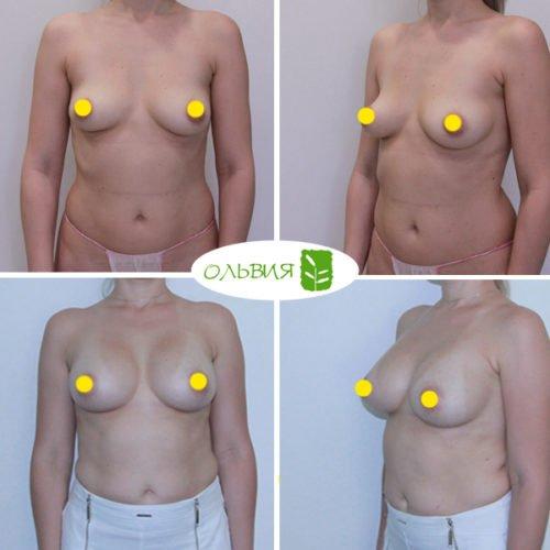 Увеличение груди, Sebbin 325гр, спустя 4 месяца