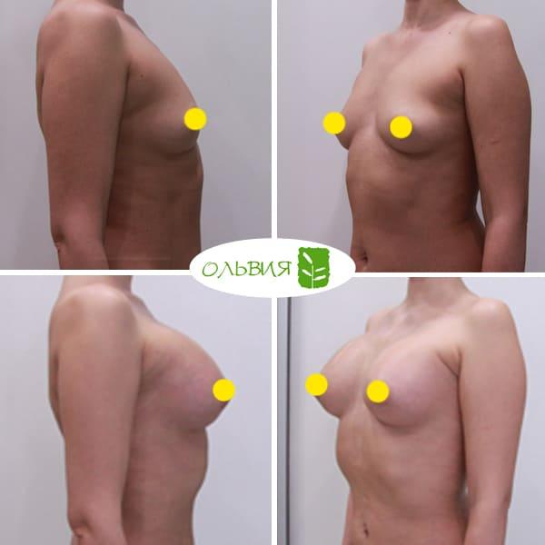 Увеличение груди Sebbin 370гр, спустя 3 месяца