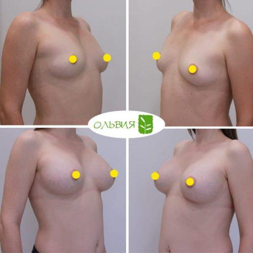 Увеличение груди имплантами, SEBBIN 370гр, спустя 6 месяцев