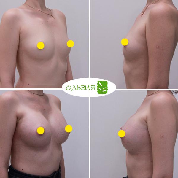 Увеличение груди имплантами Sebbin 325гр, спустя 1 месяц