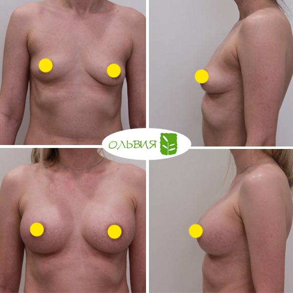 Увеличение груди имплантами Sebbin 325гр, спустя 3 месяца