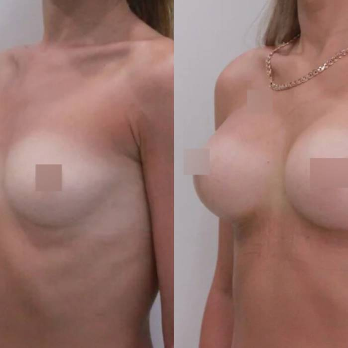 Увеличение груди трансаксиллярным способом, 325гр, спустя 2 недели