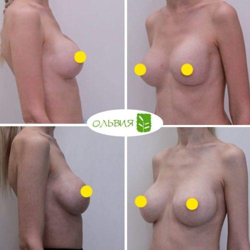 Замена имплантов, Sebbin 300гр, спустя 6 месяцев
