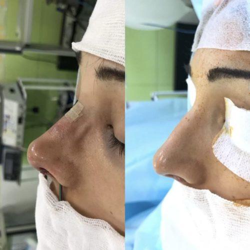 Ринопластика ДО и сразу ПОСЛЕ операции